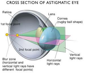 A Guide to Nearsightedness (Myopia), Farsightedness ...